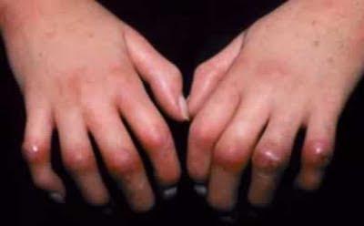 scleroderma Obat Herbal Penyakit Scleroderma (Penyakit Autoimun Dari Jaringan Ikat)