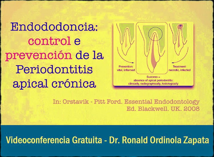 periodontitis-apical-cronica