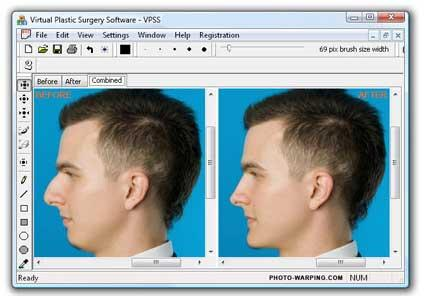 Image result for Plastic Surgery Software