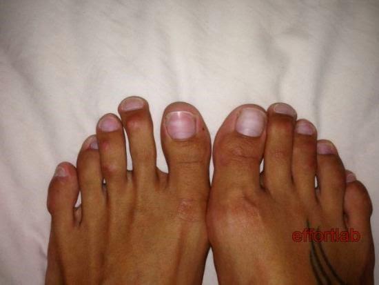 bedah-kaki-cinderella-surgery