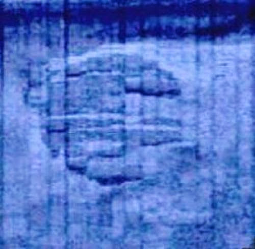 Scientists To Explore The Baltic Sea Ufo Anomaly