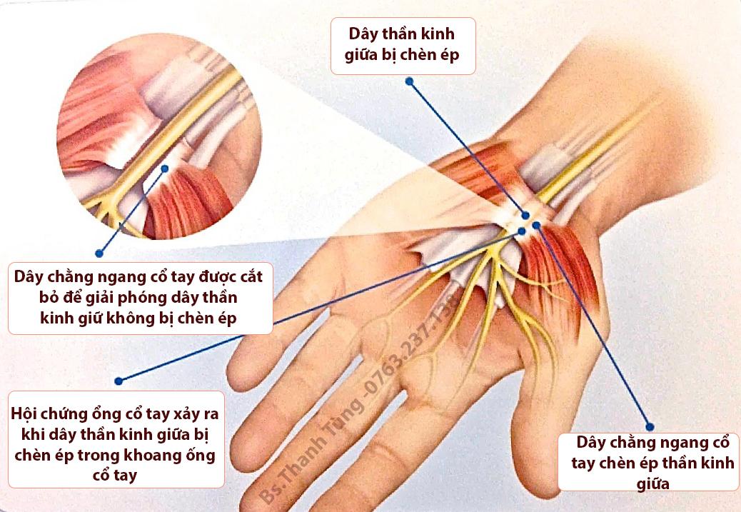 Minh hoạ phẫu thuật cát bỏ dây chằng ngang cổ tay giải phóng thần kinh giữa