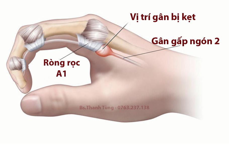 Minh hoạ tổn thương trong bệnh ngón tay cò súng