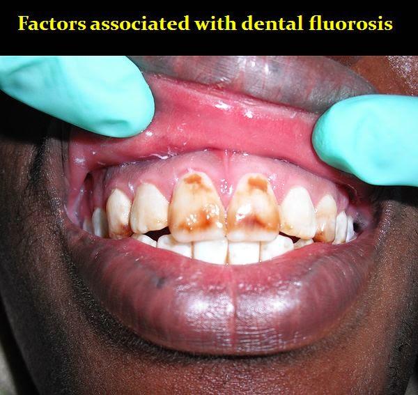 dental-fluorosis
