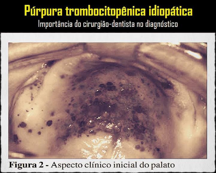 Púrpura-Trombocitopênica-Idiopática