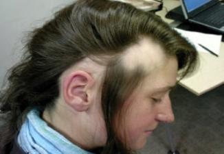 alopecia tratamento