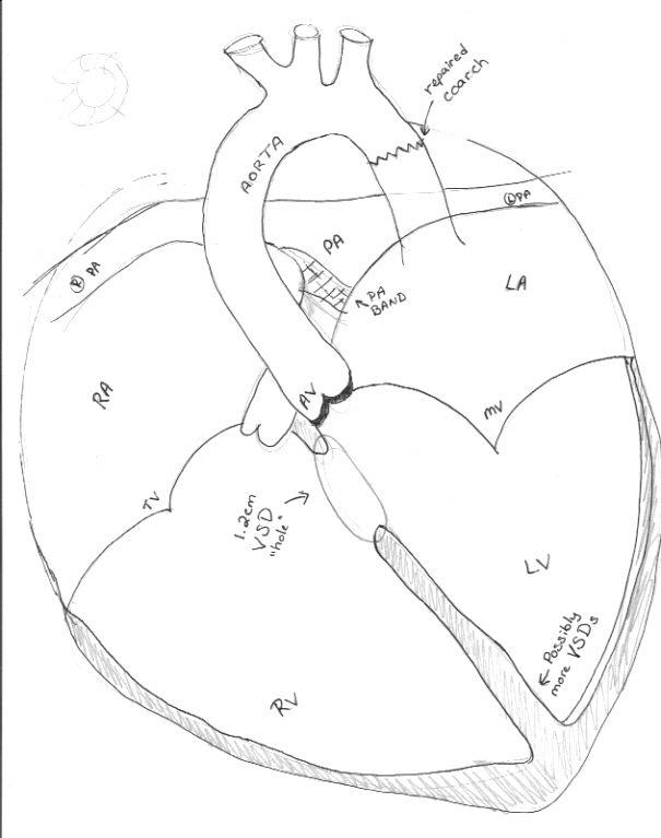 Joey Updates Joeys Heart Diagram