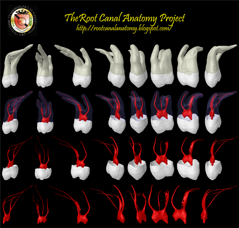 The Root Canal Anatomy Project: Maxillary Second Molar
