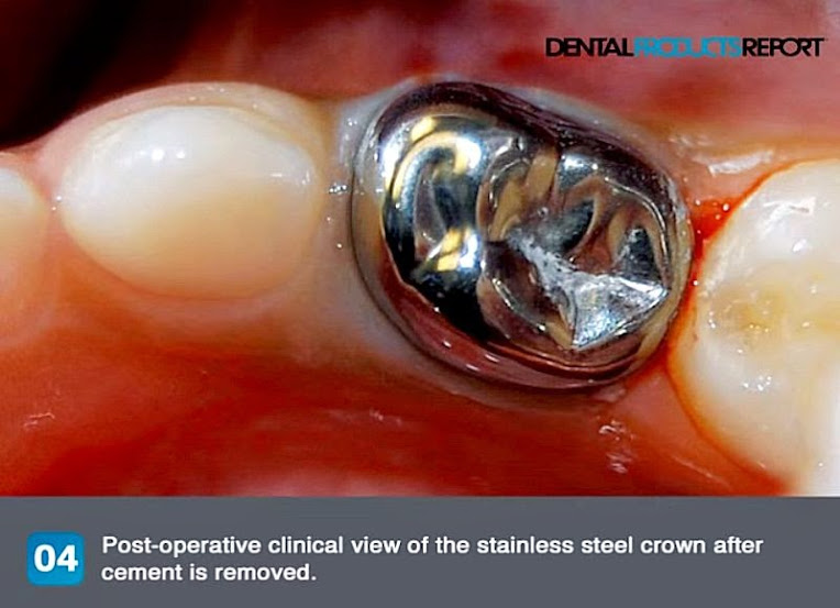 stainless-steel-crown