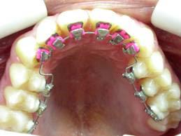 https://lh4.googleusercontent.com/-op5uqIT6jmY/T0-Yza6vxBI/AAAAAAAACXE/U3nOyr2mCf8/s259/ortodont03.jpg
