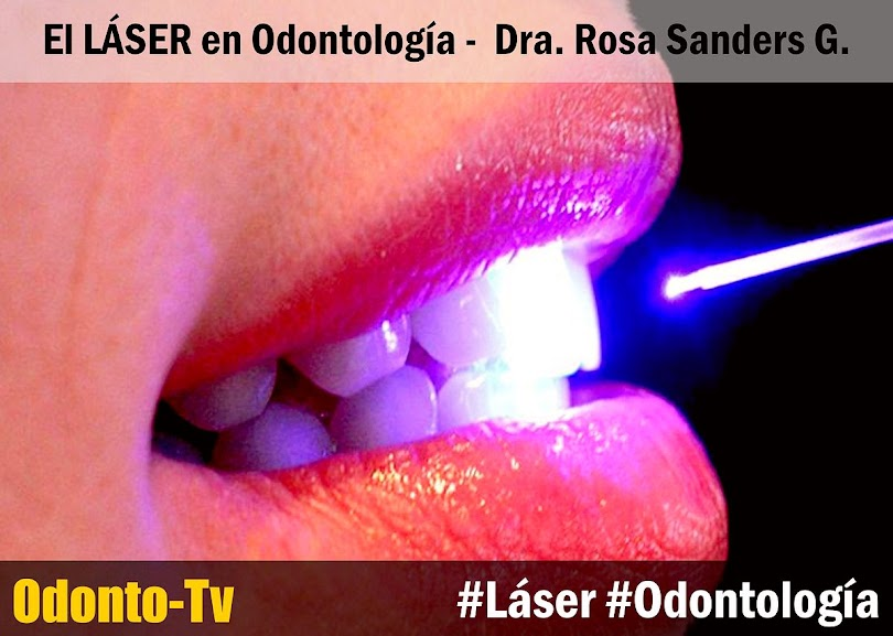 laser-en-odontologia
