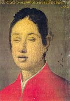 Fernando II desfigurado por la viruela