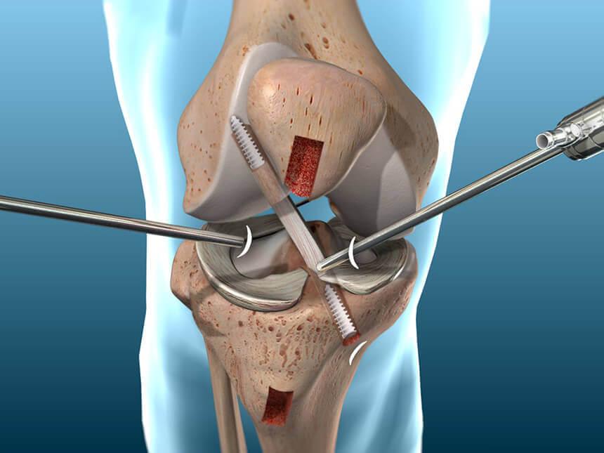 Phẫu thuật nội soi tái tạo dây chằng chéo trước
