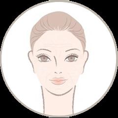 Type de peau : Peau sèche
