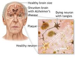 Health Tips: Alzheimer's disease: reason for alzheimer's disease