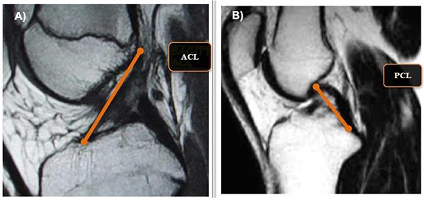 Hình ảnh đứt dây chằng chéo trước và sau trên MRI