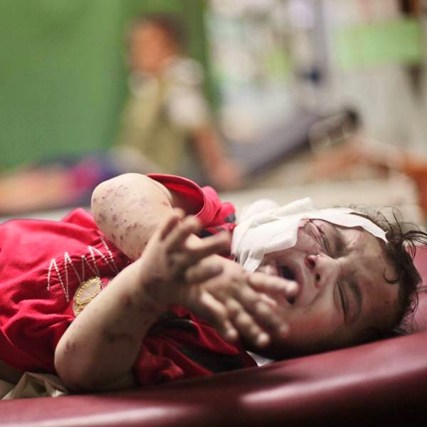 A Palestinian boy cries while receiving treatment for injuries caused by an Israeli strike at a U.N. school in Jebaliya refugee camp, at the Kamal Adwan hospital in Beit Lahiya, northern Gaza Strip.