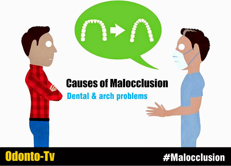 Causes-malocclusion