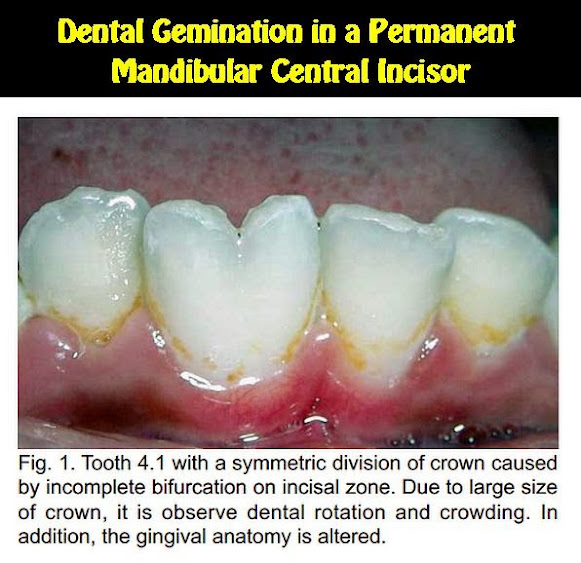 Dental-Gemination