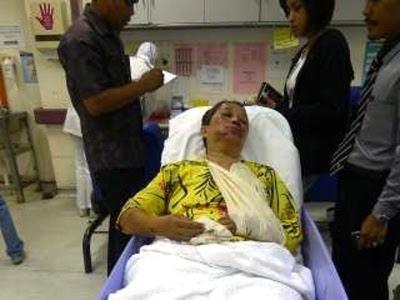 Ibu tunggal parah diragut, terjatuh dari motosikal