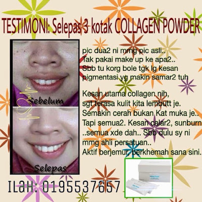 testimoni shaklee collagen