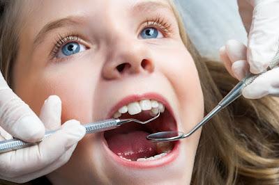 Nên nhổ răng sữa khi nào