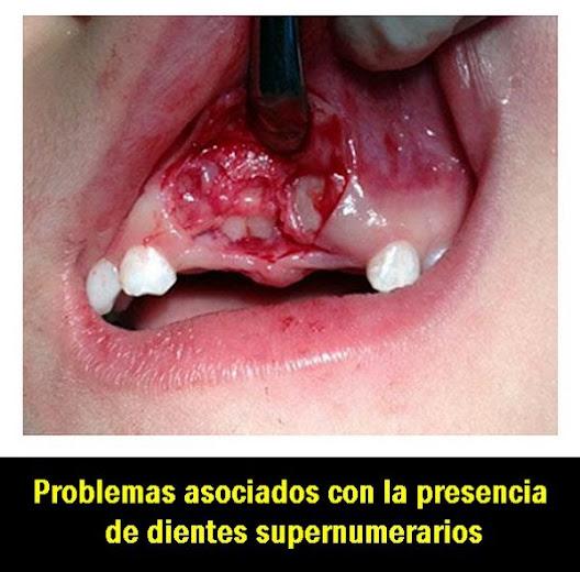 dientes-supernumerarios
