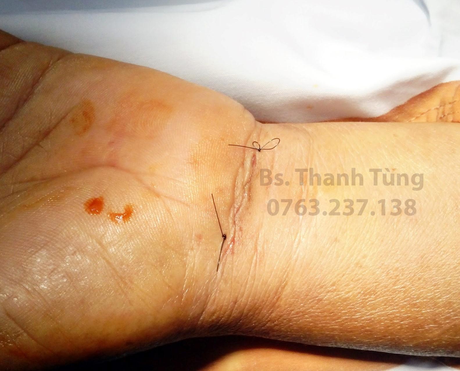 Hình ảnh vết mổ hội chứng ống cổ tay sau khi vừa khâu lại