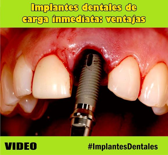 implantes-dentales-ventajas