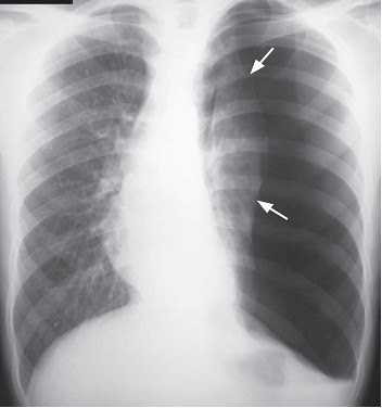 on radiology radiological abnormality in case of tension pneumothorax. Black Bedroom Furniture Sets. Home Design Ideas