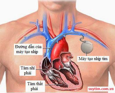Máy tạo nhịp giúp ổn định nhịp tim