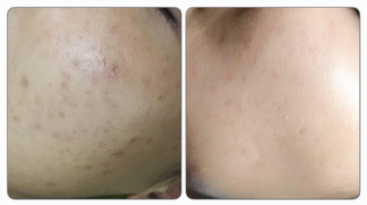 Chăm sóc da sau khi trị liệu bằng Laser Fractional CO2