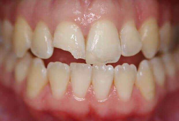Chia sẻ kinh nghiệm Bị mẻ răng cửa có trám được không từ bác sỹ
