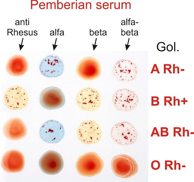 Praktikum golongan darah ABO dan Rhesus