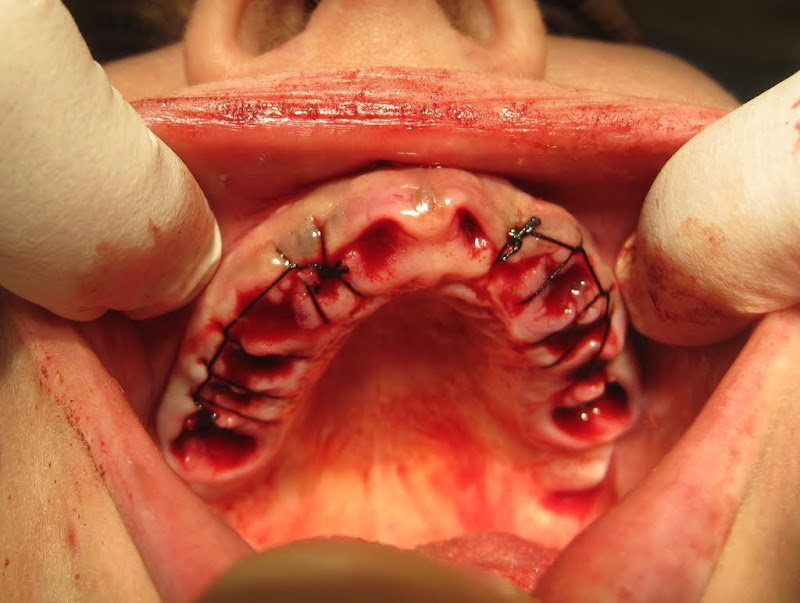 stomatolog-foto-golie