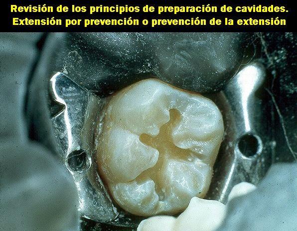 cavidades-operatoria