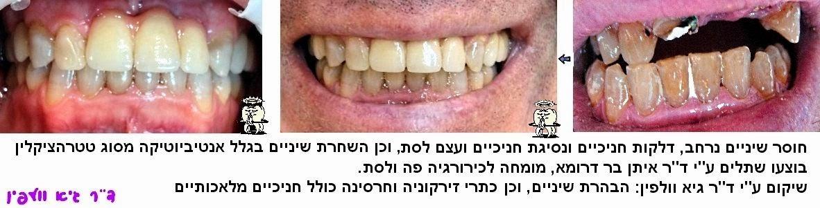 כתרי זירקוניה , שיקום הפה, אסתטיקה דנטלית, הלבנה, חיוך, כירורגיה, השתלות, וולפין