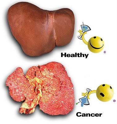 liver%252520cancer Lindungi Hati (Liver) Anda dari Bahaya Kanker Hati
