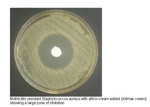 Badania in-vitro właściwości antybiotycznych wybranych gatunków roślin