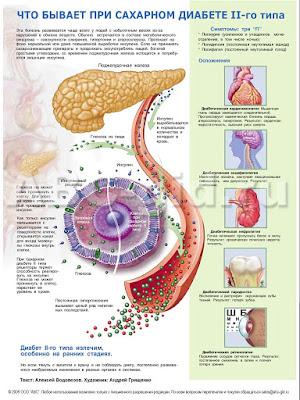 Сахарный диабет 2-го типа. Инфографика.