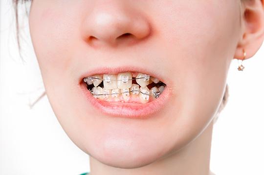 braces-ceramic.jpg