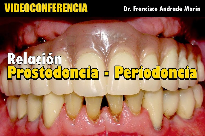 protesis-periodoncia