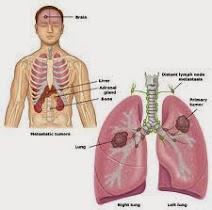 SUPER LUTEIN – Obat Herbal Kanker Paru Paru Stadium Lanjut