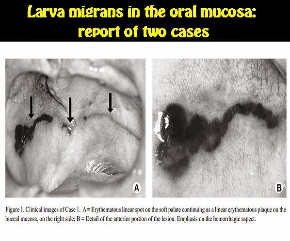 larva-oral-mucosa