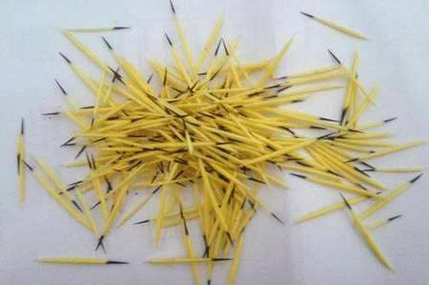 ブラジルで女性の頭にヤマアラシが落下。約200本の針が頭に刺さる