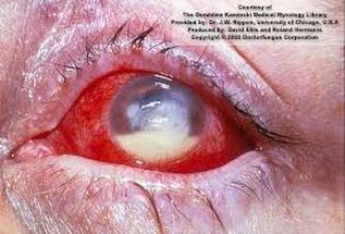 obat kortikosteroid tetes mata
