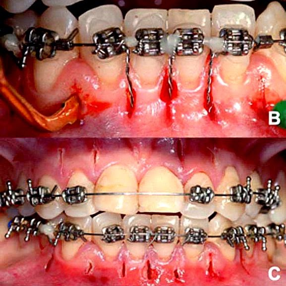 Rapid-Orthodontics