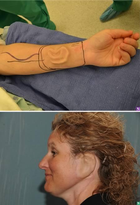 1. - A mulher que teve uma orelha crescendo em seu braço