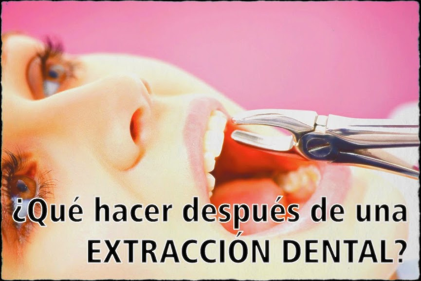 extraccion-dental