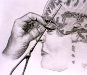 The gallery for --> Lobotomy Procedure Steps